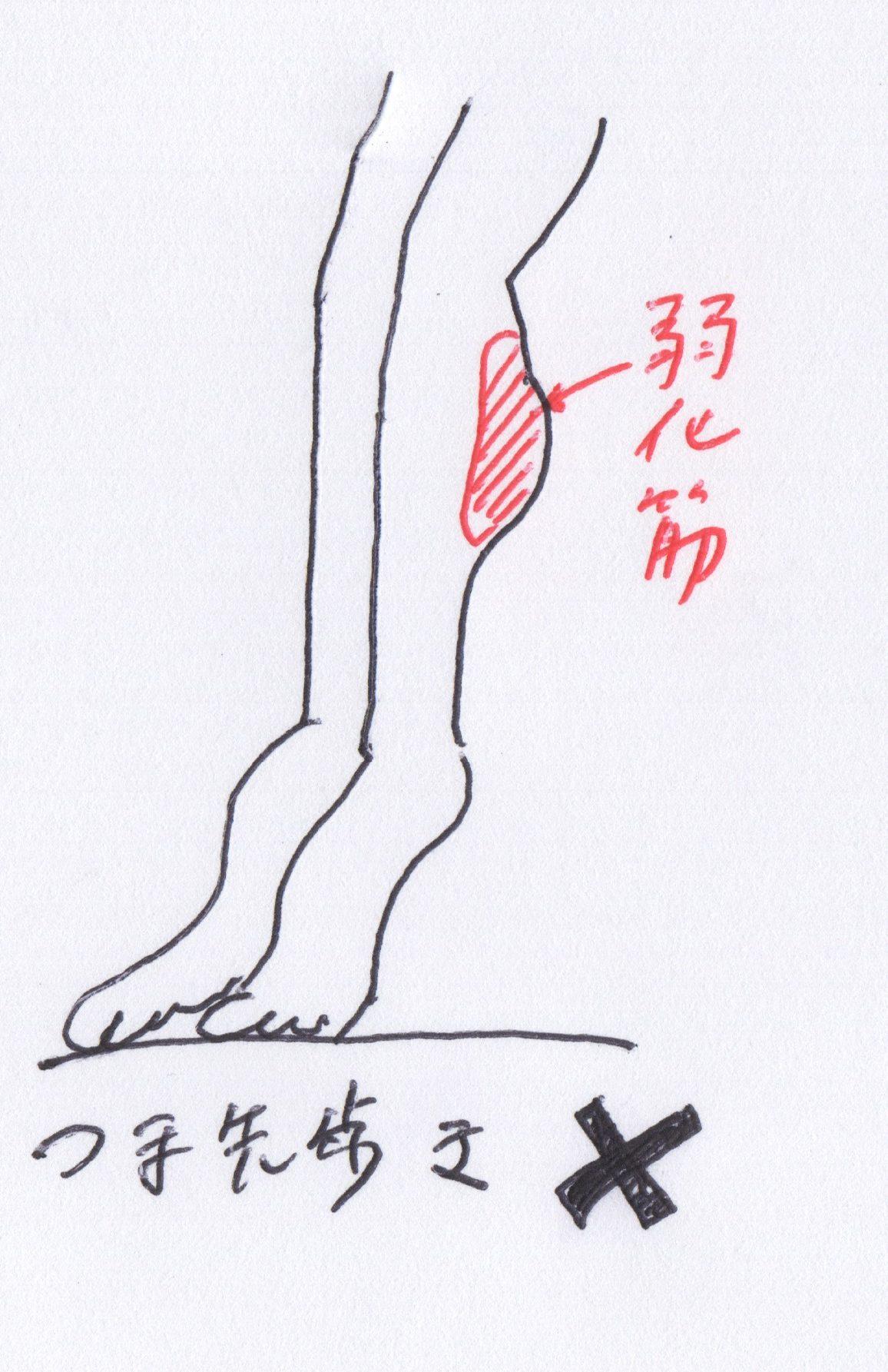 熊本市-整体-坐骨神経痛