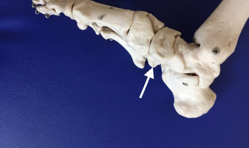 熊本市-有痛性外脛骨-整体