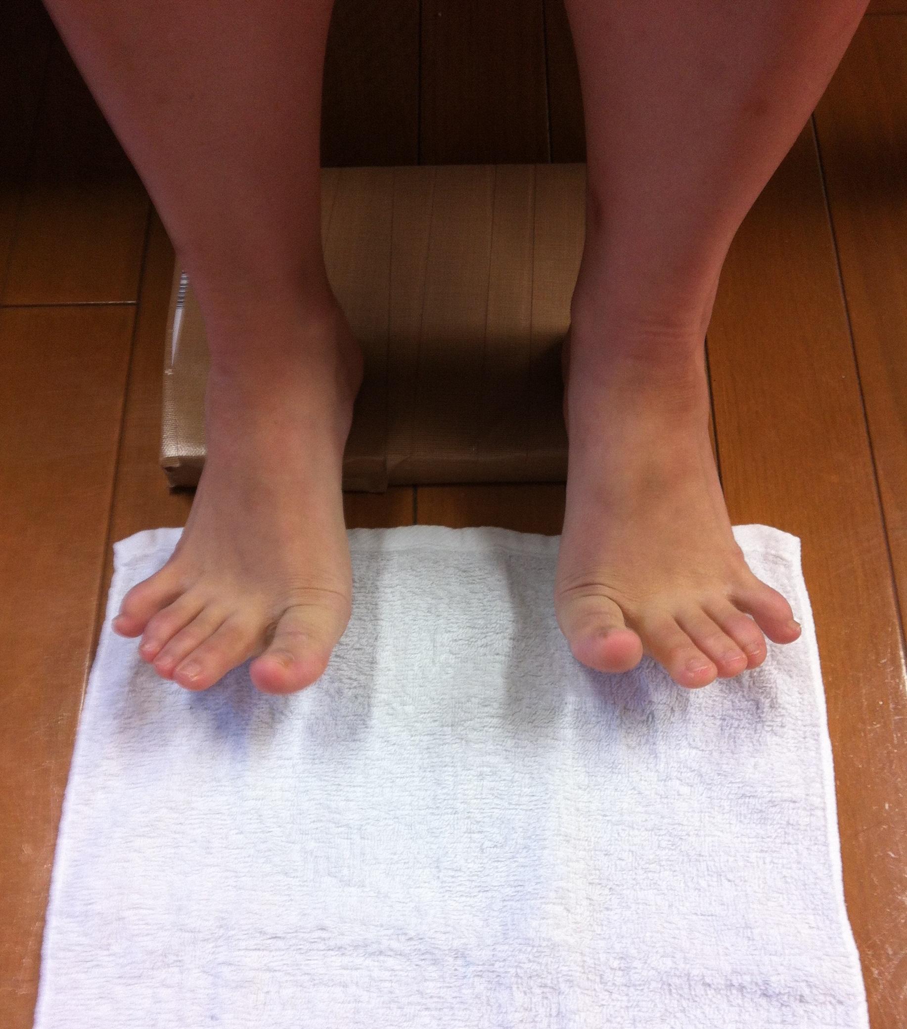 熊本市-足底腱膜炎-整体