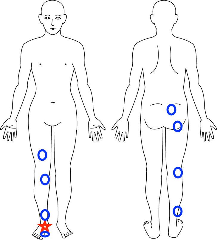 熊本-有痛性外脛骨-整体