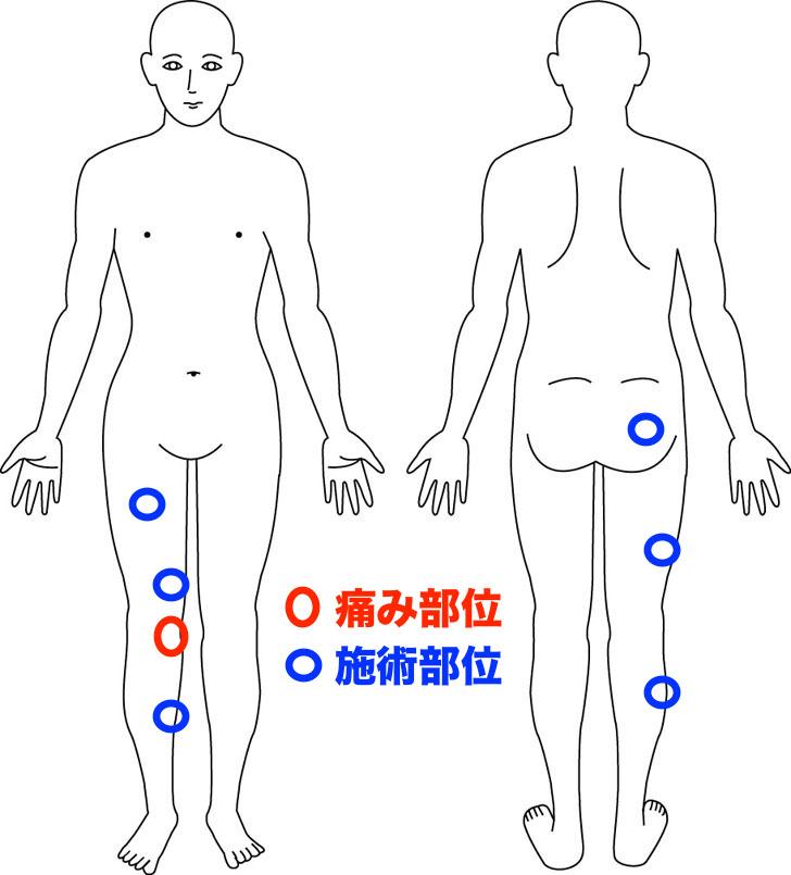 熊本-鵞足炎-整体