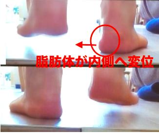熊本-足底腱膜炎-整体