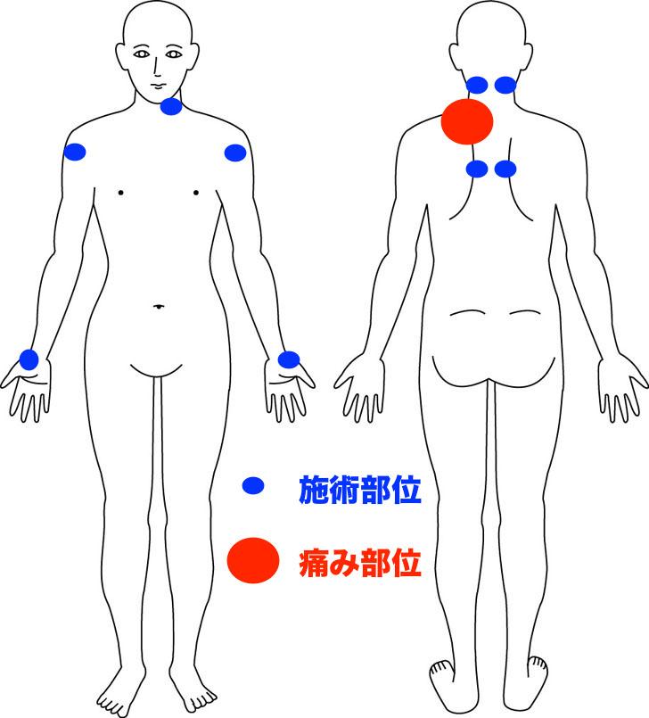 熊本-筋膜調整-整体