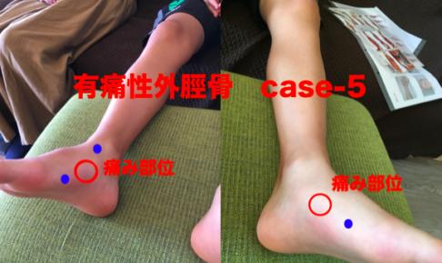 有痛性外脛骨-熊本-整体