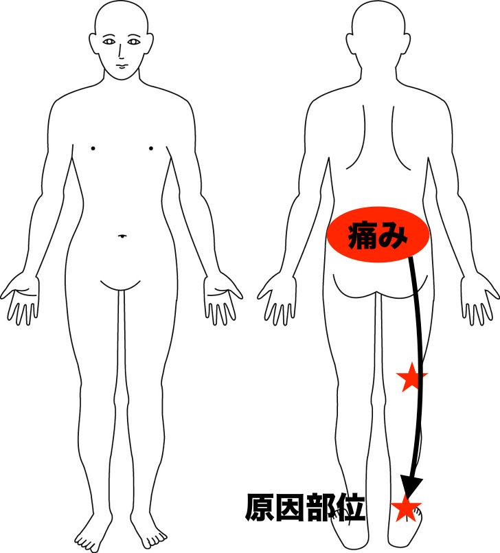 熊本市-慢性腰痛-整体