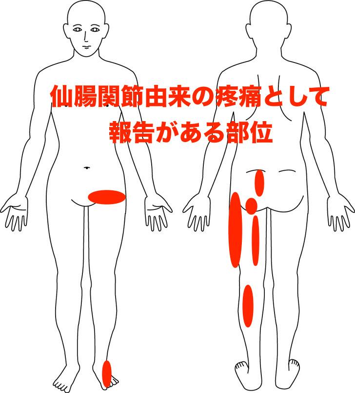 熊本市-仙腸関節痛-整体