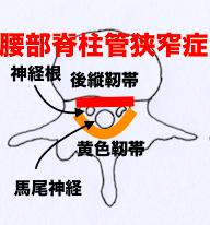 熊本-腰部脊柱管狭窄症-整体