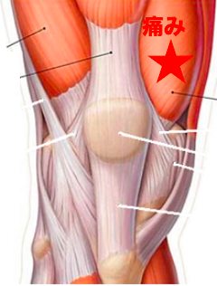 筋膜リリース-熊本-整体